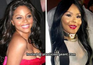 I'm not only a client, I'm the plastic surgery fan club president.